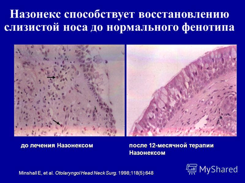 63 до лечения Назонексом после 12-месячной терапии Назонексом Minshall E, et al. Otolaryngol Head Neck Surg. 1998;118(5):648 Назонекс способствует восстановлению слизистой носа до нормального фенотипа