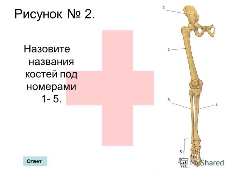 Рисунок 2. Назовите названия костей под номерами 1- 5. Ответ