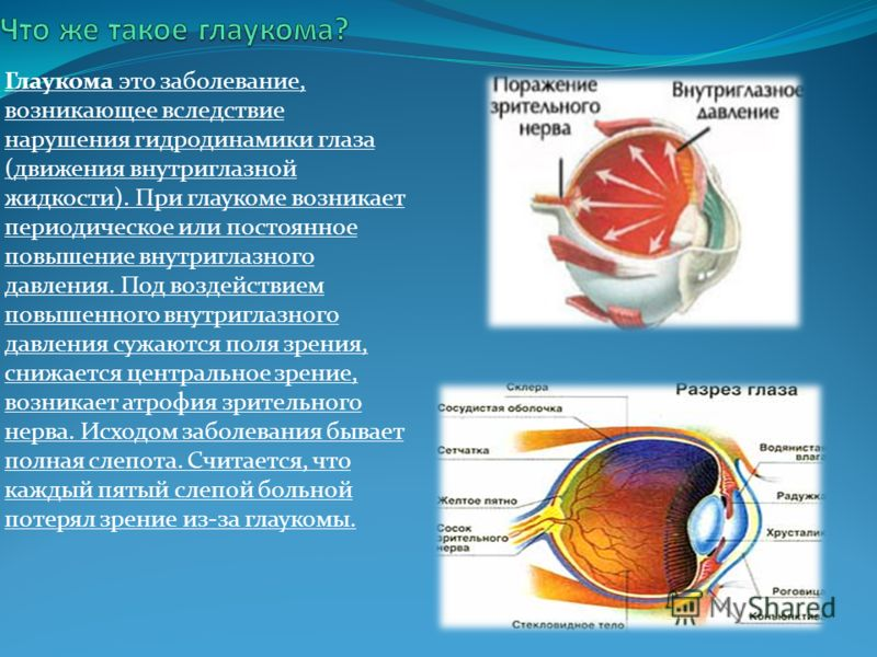 Глаукома это заболевание, возникающее вследствие нарушения гидродинамики глаза (движения внутриглазной жидкости). При глаукоме возникает периодическое или постоянное повышение внутриглазного давления. Под воздействием повышенного внутриглазного давле