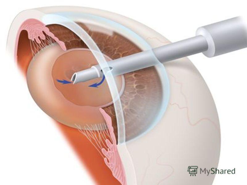 Почему после лазерной коррекции зрения нельзя пить