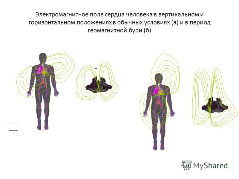 (а) Рис. 17.1 Электромагнитное поле сердца человека в вертикальном и горизонтальном положениях в обычных условиях (а) и в период геомагнитной бури (б) + _ + _ Электромагнитное поле сердца человека в вертикальном и горизонтальном положениях в обычных