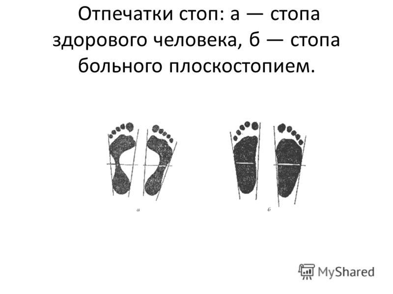 Отпечатки стоп: а стопа здорового человека, б стопа больного плоскостопием.