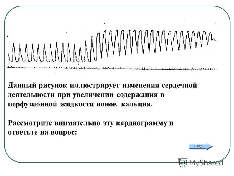 Данный рисунок иллюстрирует изменения сердечной деятельности при увеличении содержания в перфузионной жидкости ионов кальция. Рассмотрите внимательно эту кардиограмму и ответьте на вопрос: