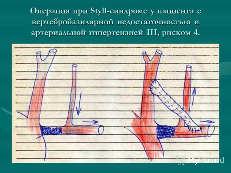 Операция при Styll-синдроме у пациента с вертебробазилярной недостаточностью и артериальной гипертензией III, риском 4.