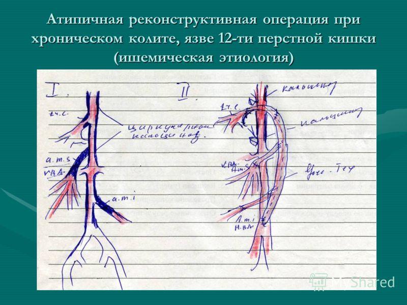 Атипичная реконструктивная операция при хроническом колите, язве 12-ти перстной кишки (ишемическая этиология)