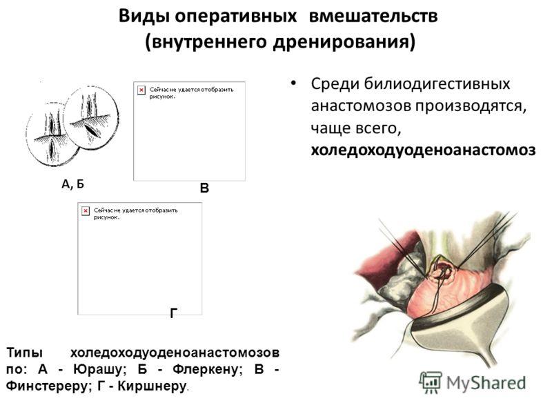 Виды оперативных вмешательств (внутреннего дренирования) Среди билиодигестивных анастомозов производятся, чаще всего, холедоходуоденоанастомоз Типы холедоходуоденоанастомозов по: А - Юрашу; Б - Флеркену; В - Финстереру; Г - Киршнеру. А, Б В Г