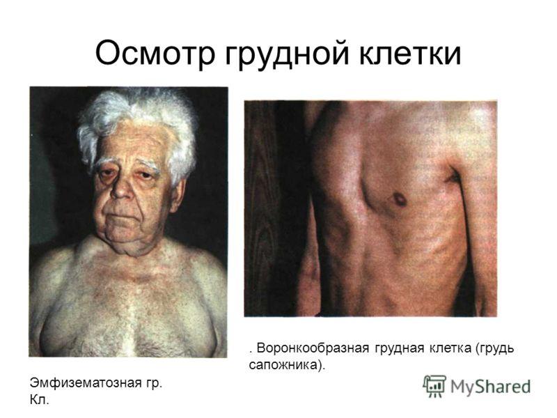 Осмотр грудной клетки Эмфизематозная гр. Кл.. Воронкообразная грудная клетка (грудь сапожника).