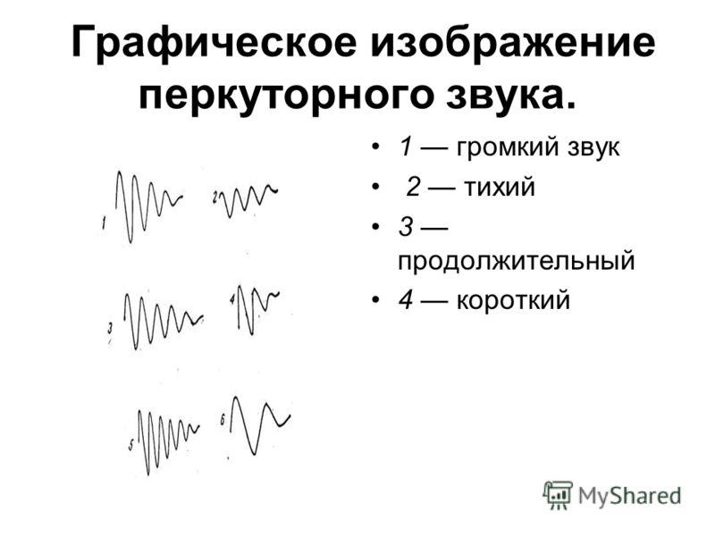 Графическое изображение перкуторного звука. 1 громкий звук 2 тихий 3 продолжительный 4 короткий
