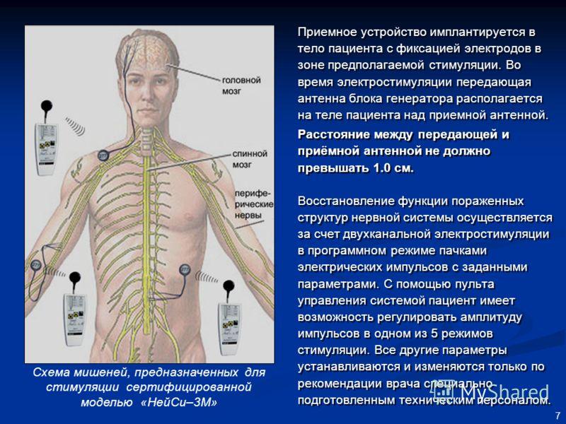 7 Приемное устройство имплантируется в тело пациента с фиксацией электродов в зоне предполагаемой стимуляции. Во время электростимуляции передающая антенна блока генератора располагается на теле пациента над приемной антенной. Расстояние между переда