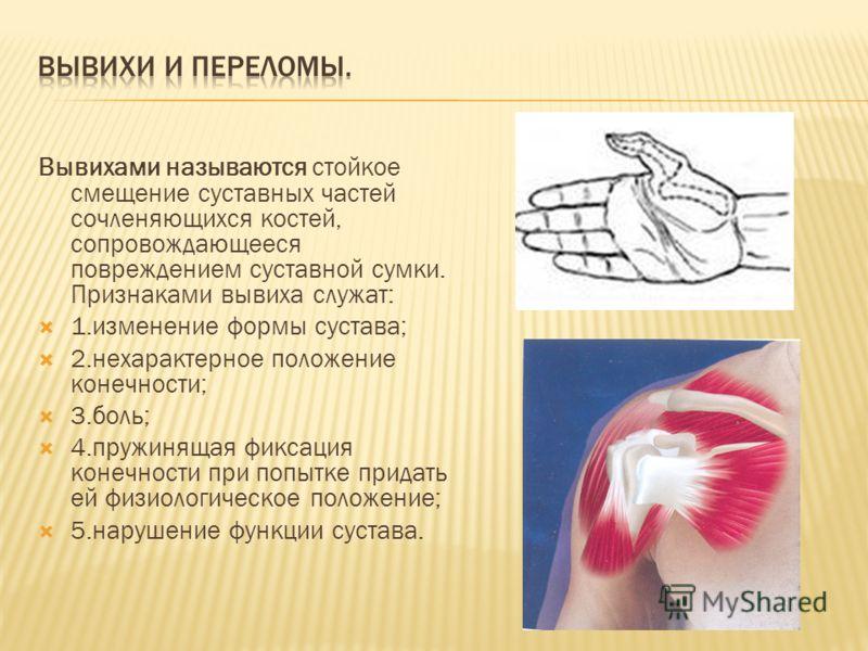 Вывихами называются стойкое смещение суставных частей сочленяющихся костей, сопровождающееся повреждением суставной сумки. Признаками вывиха служат: 1.изменение формы сустава; 2.нехарактерное положение конечности; 3.боль; 4.пружинящая фиксация конечн