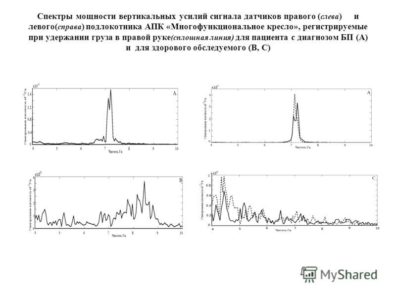 Спектры мощности вертикальных усилий сигнала датчиков правого ( слева )и левого( справа ) подлокотника АПК «Многофункциональное кресло», регистрируемые при удержании груза в правой руке (сплошная линия ) для пациента с диагнозом БП (А) и для здоровог