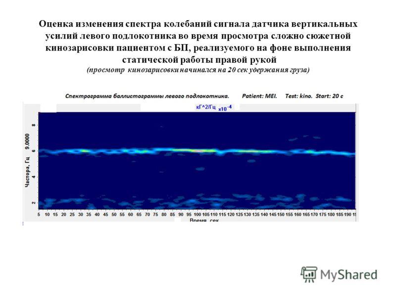 Оценка изменения спектра колебаний сигнала датчика вертикальных усилий левого подлокотника во время просмотра сложно сюжетной кинозарисовки пациентом с БП, реализуемого на фоне выполнения статической работы правой рукой (просмотр кинозарисовки начина