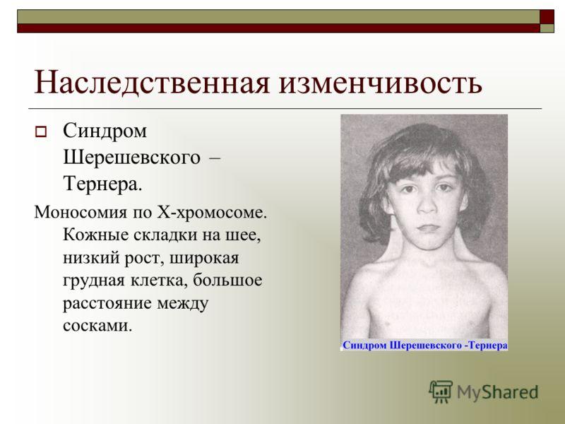 Наследственная изменчивость Синдром Шерешевского – Тернера. Моносомия по Х-хромосоме. Кожные складки на шее, низкий рост, широкая грудная клетка, большое расстояние между сосками.