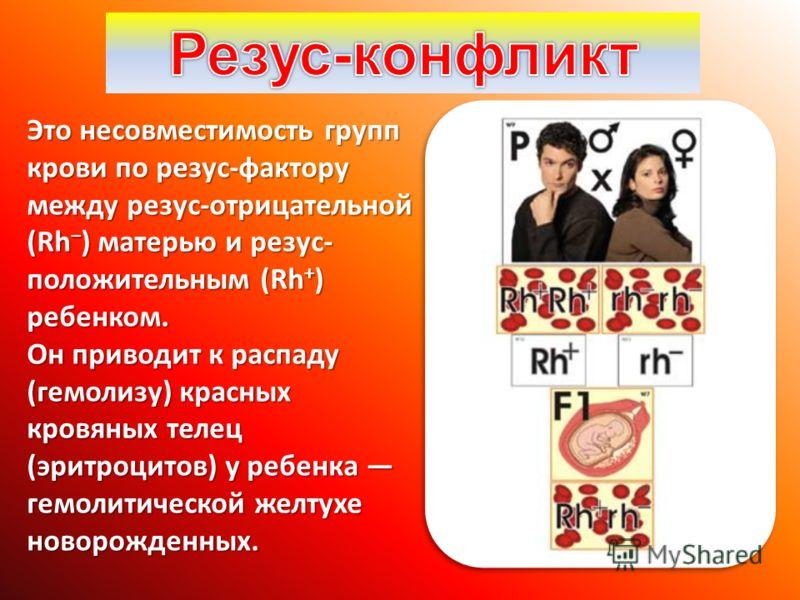 Это несовместимость групп крови по резус-фактору между резус-отрицательной (Rh ) матерью и резус- положительным (Rh + ) ребенком. Он приводит к распаду (гемолизу) красных кровяных телец (эритроцитов) у ребенка гемолитической желтухе новорожденных.