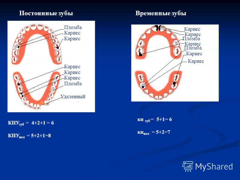 Постоянные зубыВременные зубы Пломба Кариес Удаленный КПУ зуб = 4+2+1 = 6 КПУ пол = 5+2+1=8 кп зуб = 5+1= 6 кп пол = 5+2=7