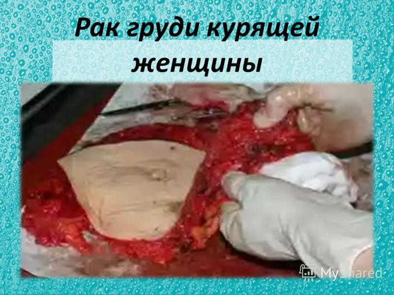 Рак груди курящей женщины