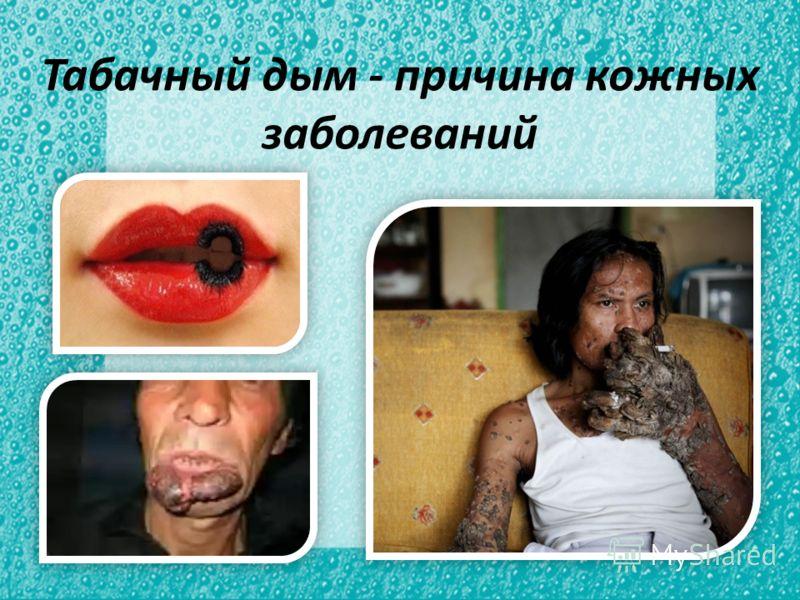 Табачный дым - причина кожных заболеваний