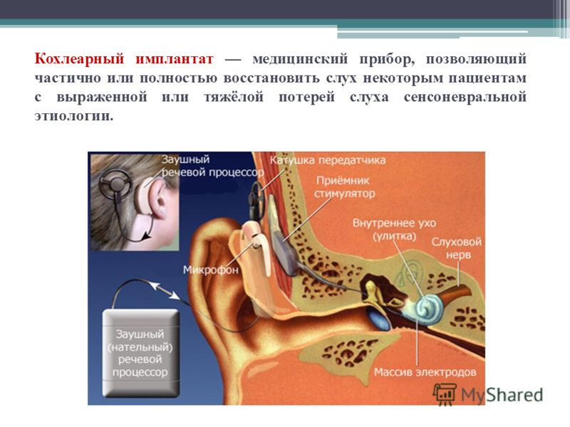 Кохлеарный имплантат медицинский прибор, позволяющий частично или полностью восстановить слух некоторым пациентам с выраженной или тяжёлой потерей слуха сенсоневральной этиологии.