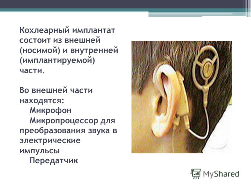 Кохлеарный имплантат состоит из внешней (носимой) и внутренней (имплантируемой) части. Во внешней части находятся: Микрофон Микропроцессор для преобразования звука в электрические импульсы Передатчик