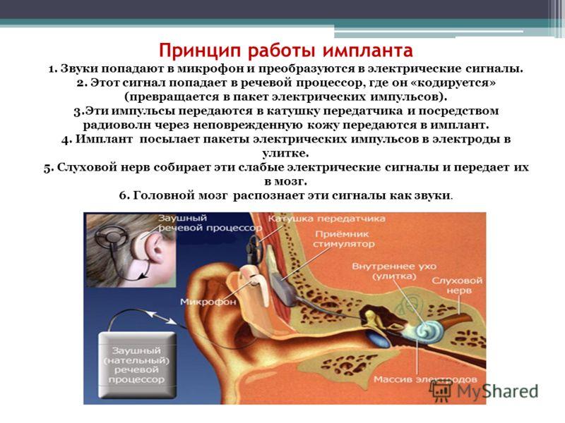 Принцип работы импланта 1. Звуки попадают в микрофон и преобразуются в электрические сигналы. 2. Этот сигнал попадает в речевой процессор, где он «кодируется» (превращается в пакет электрических импульсов). 3.Эти импульсы передаются в катушку передат