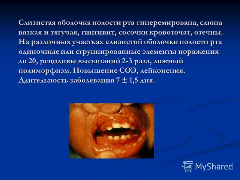 Слизистая оболочка полости рта гиперемирована, слюна вязкая и тягучая, гингивит, сосочки кровоточат, отечны. На различных участках слизистой оболочки полости рта одиночные или сгруппированные элементы поражения до 20, рецидивы высыпаний 2-3 раза, лож