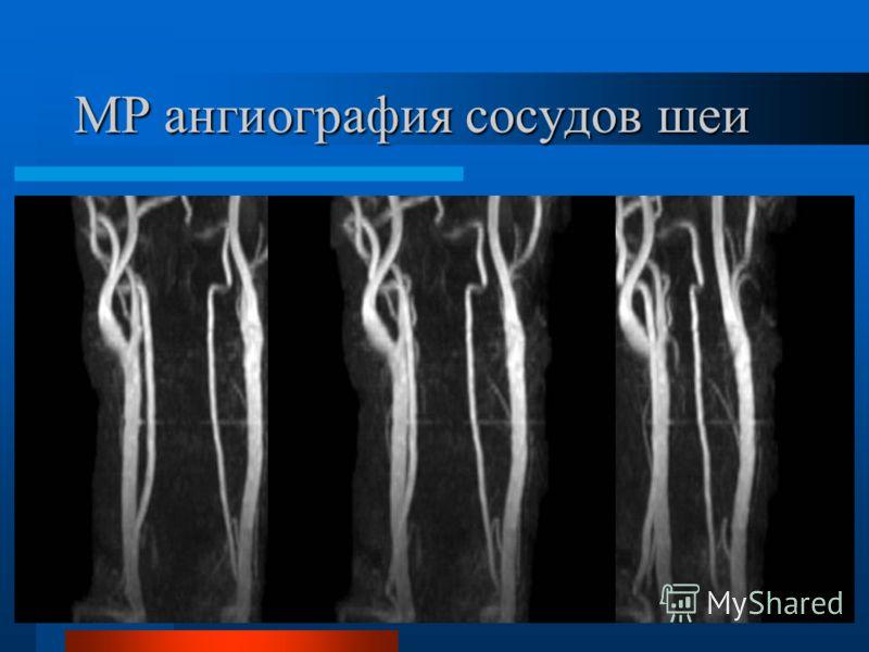МР ангиография сосудов шеи