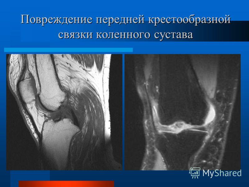 Повреждение передней крестообразной связки коленного сустава