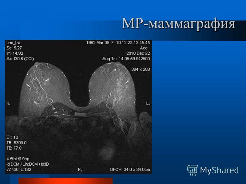 МР-маммаграфия