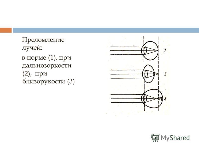 Преломление лучей: в норме (1), при дальнозоркости (2), при близорукости (3)