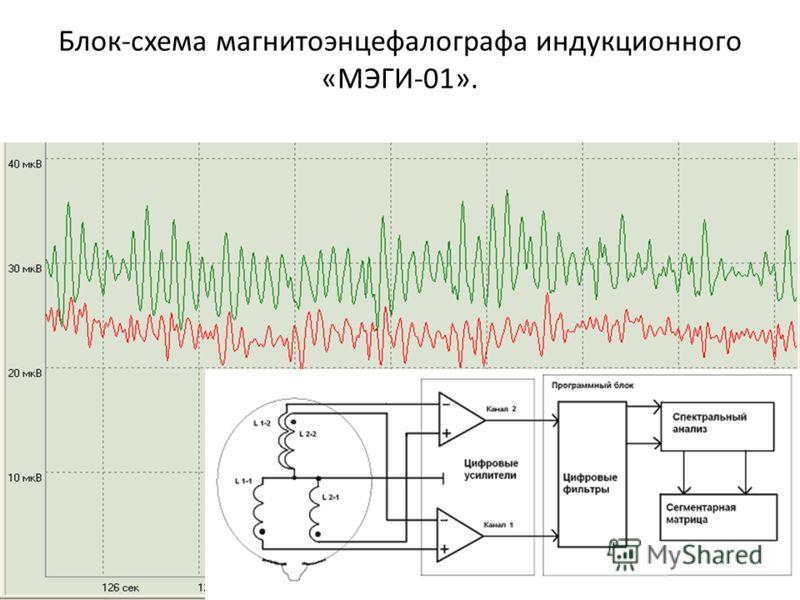 Блок-схема магнитоэнцефалографа индукционного «МЭГИ-01».