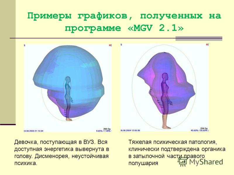 Примеры графиков, полученных на программе «MGV 2.1» Девочка, поступающая в ВУЗ. Вся доступная энергетика вывернута в голову. Дисменорея, неустойчивая психика. Тяжелая психическая патология, клинически подтверждена органика в затылочной части правого