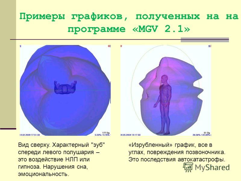 Примеры графиков, полученных на на программе «MGV 2.1» Вид сверху. Характерный