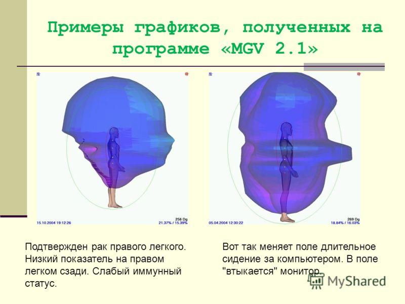 Примеры графиков, полученных на программе «MGV 2.1» Подтвержден рак правого легкого. Низкий показатель на правом легком сзади. Слабый иммунный статус. Вот так меняет поле длительное сидение за компьютером. В поле втыкается монитор.