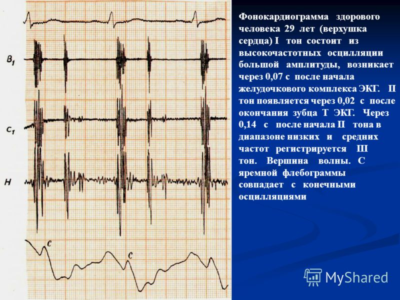 Фонокардиограмма здорового человека 29 лет (верхушка сердца) I тон состоит из высокочастотных осцилляции большой амплитуды, возникает через 0,07 с после начала желудочкового комплекса ЭКГ. II тон появляется через 0,02 с после окончания зубца Т ЭКГ. Ч