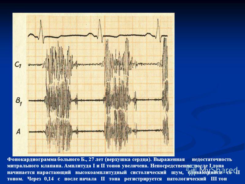 Фонокардиограмма больного Б., 27 лет (верхушка сердца). Выраженная недостаточность митрального клапана. Амплитуда I и II тонов увеличена. Непосредственно после I тона начинается нарастающий высокоамплитудный систолический шум, сливающийся со II тоном