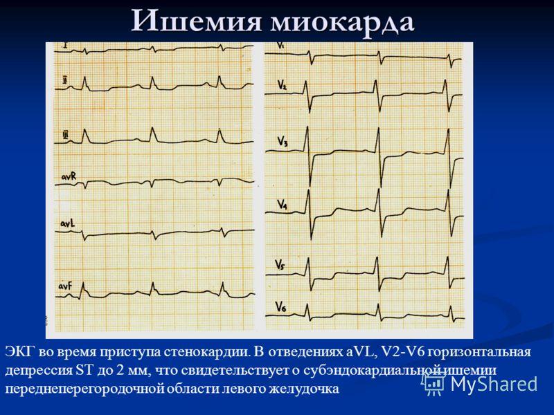 Ишемия миокарда ЭКГ во время приступа стенокардии. В отведениях aVL, V2-V6 горизонтальная депрессия ST до 2 мм, что свидетельствует о субэндокардиальной ишемии переднеперегородочной области левого желудочка