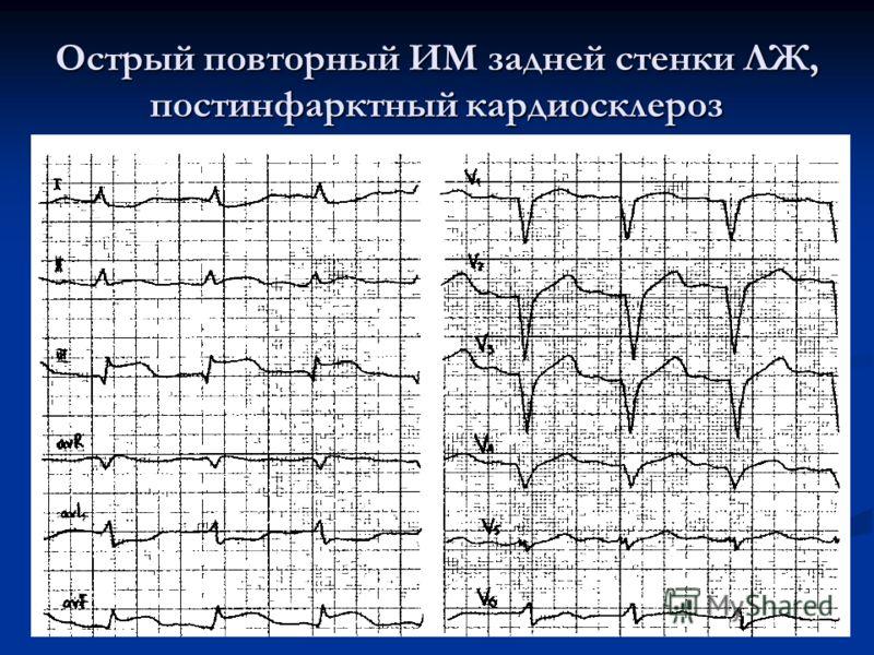 Острый повторный ИМ задней стенки ЛЖ, постинфарктный кардиосклероз