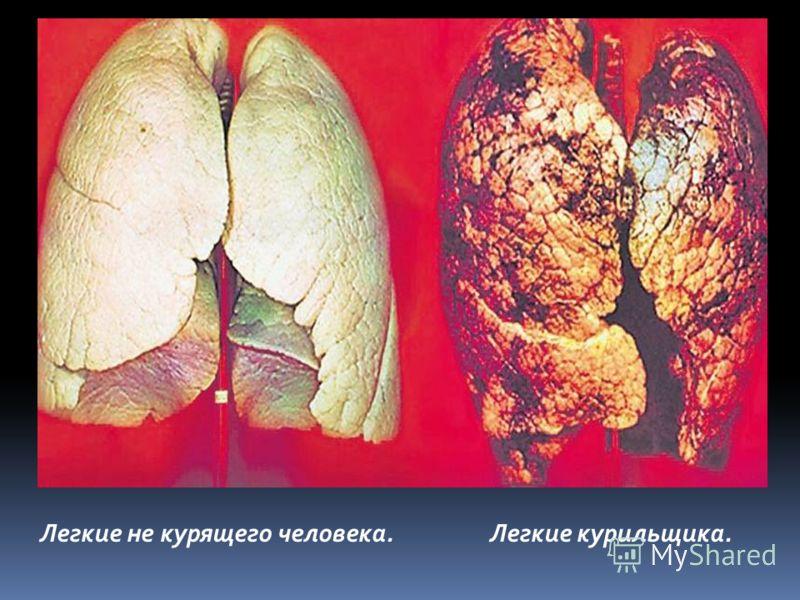 Легкие не курящего человека.Легкие курильщика.