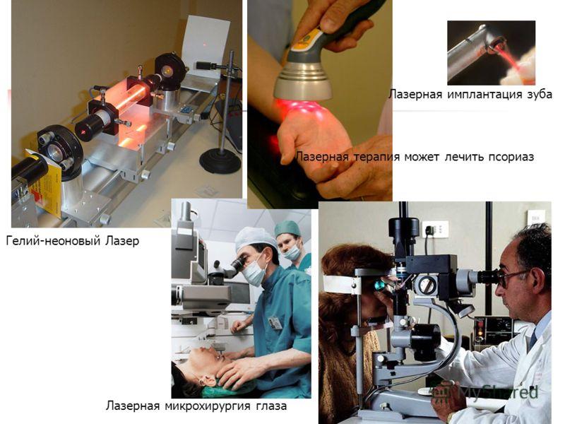 Лазерная имплантация зуба Гелий-неоновый Лазер Лазерная терапия может лечить псориаз Лазерная микрохирургия глаза
