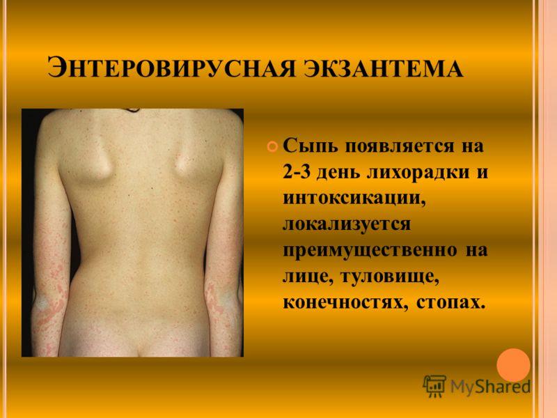 Э НТЕРОВИРУСНАЯ ЭКЗАНТЕМА Сыпь появляется на 2-3 день лихорадки и интоксикации, локализуется преимущественно на лице, туловище, конечностях, стопах.