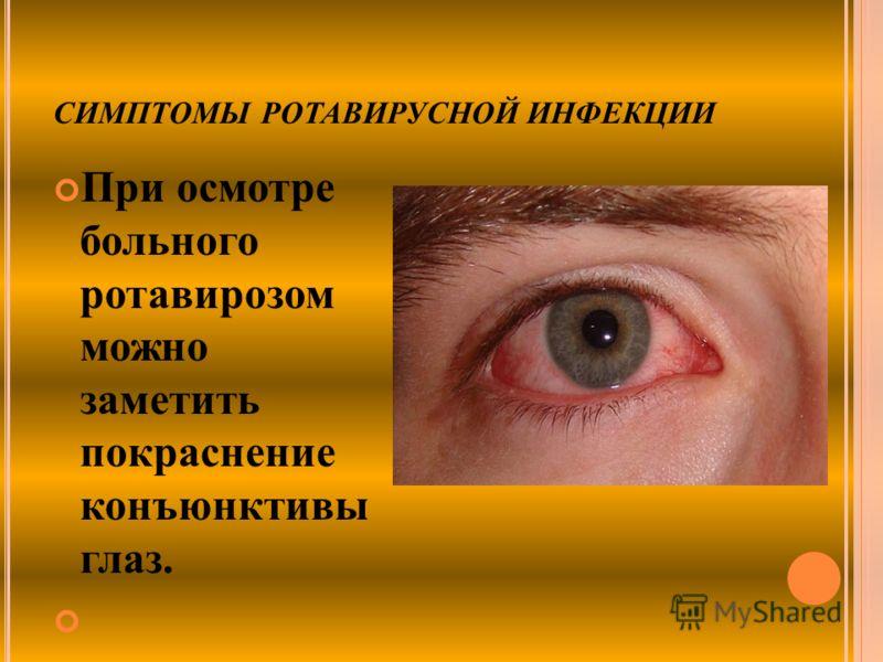 СИМПТОМЫ РОТАВИРУСНОЙ ИНФЕКЦИИ При осмотре больного ротавирозом можно заметить покраснение конъюнктивы глаз.