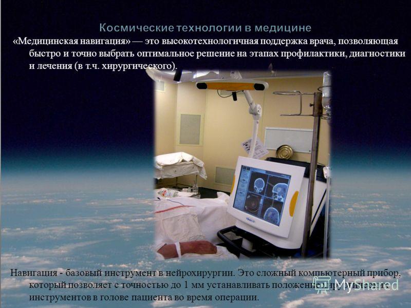 « Медицинская навигация » это высокотехнологичная поддержка врача, позволяющая быстро и точно выбрать оптимальное решение на этапах профилактики, диагностики и лечения ( в т. ч. хирургического ). Навигация - базовый инструмент в нейрохирургии. Это сл