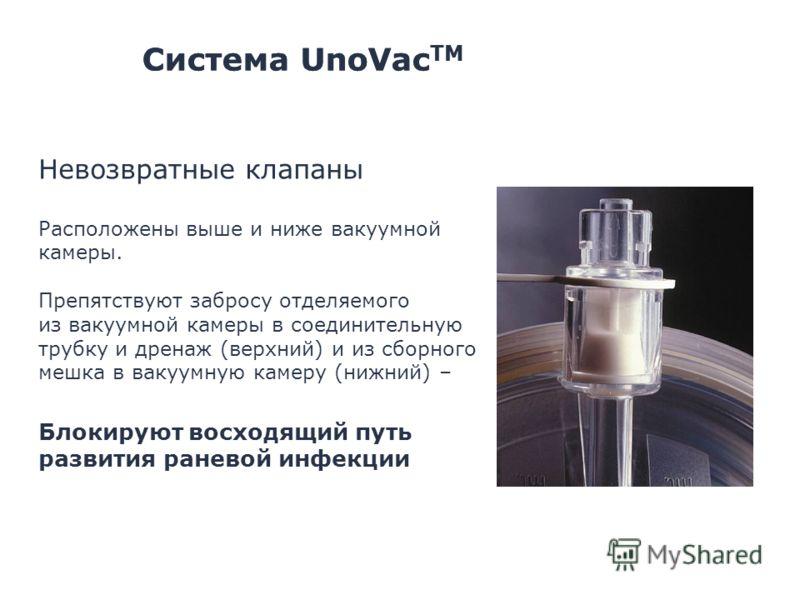 Система UnoVac TM Невозвратные клапаны Расположены выше и ниже вакуумной камеры. Препятствуют забросу отделяемого из вакуумной камеры в соединительную трубку и дренаж (верхний) и из сборного мешка в вакуумную камеру (нижний) – Блокируют восходящий пу