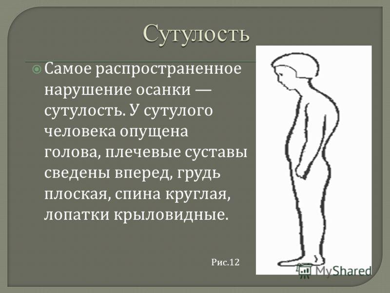 Самое распространенное нарушение осанки сутулость. У сутулого человека опущена голова, плечевые суставы сведены вперед, грудь плоская, спина круглая, лопатки крыловидные. Рис.12
