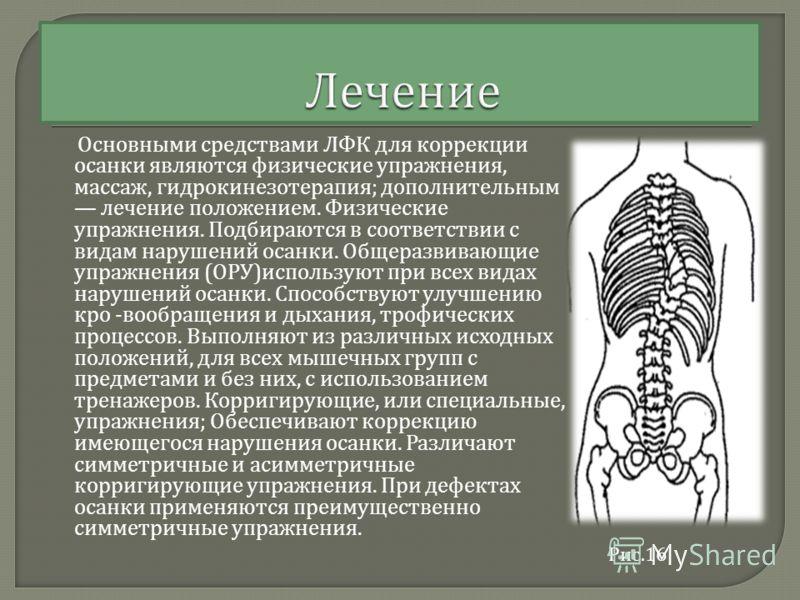 Основными средствами ЛФК для коррекции осанки являются физические упражнения, массаж, гидрокинезотерапия ; дополнительным лечение положением. Физические упражнения. Подбираются в соответствии с видам нарушений осанки. Общеразвивающие упражнения ( ОРУ