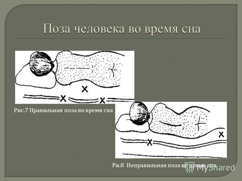 Рис.7 Правильная поза во время сна Ри.8 Неправильная поза во время сна