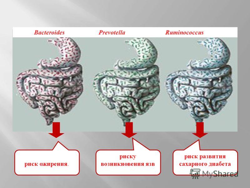 риск ожирения. риску возникновения язв риск развития сахарного диабета Bacteroides Prevotella Ruminococcus