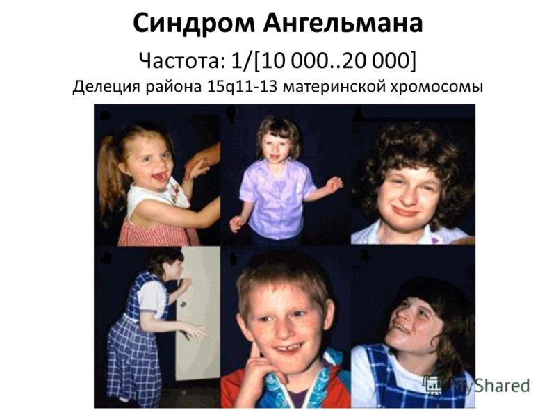 Синдром Ангельмана Частота: 1/[10 000..20 000] Делеция района 15q11-13 материнской хромосомы