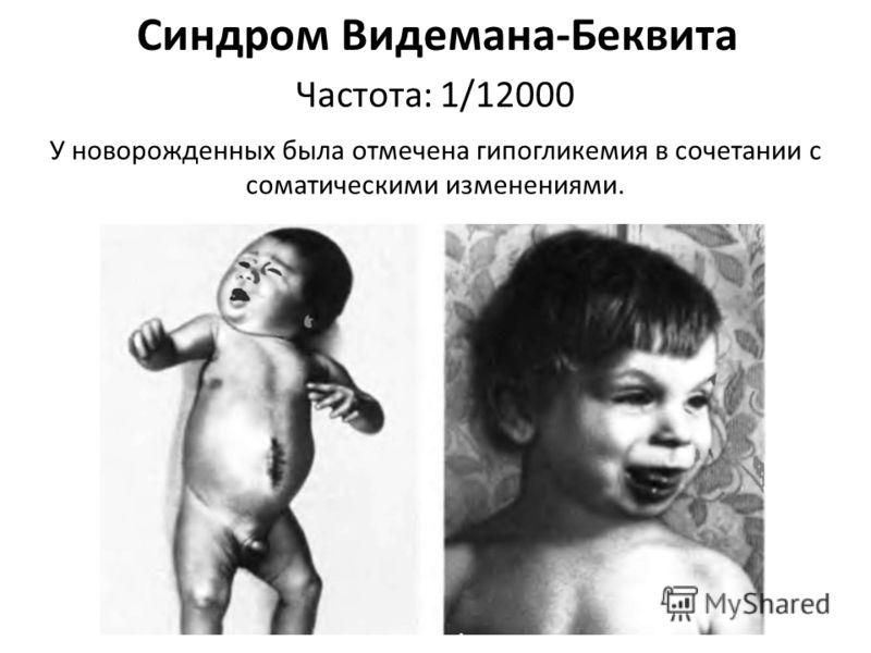 Синдром Видемана-Беквита У новорожденных была отмечена гипогликемия в сочетании с соматическими изменениями. Частота: 1/12000