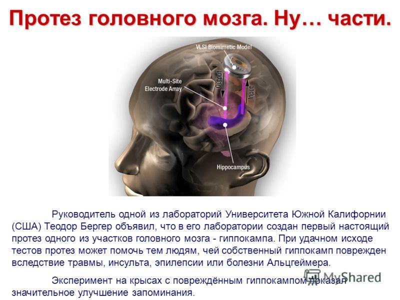Протез головного мозга. Ну… части. Руководитель одной из лабораторий Университета Южной Калифорнии (США) Теодор Бергер объявил, что в его лаборатории создан первый настоящий протез одного из участков головного мозга - гиппокампа. При удачном исходе т